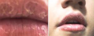 уход за губами после татуажа