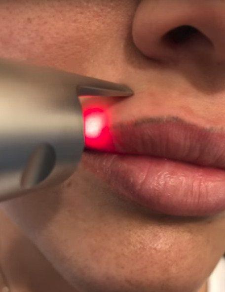 Удаление перманентного макияжа с губ