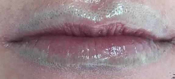 Удаление перманентного макияжа с губ ривайвинком