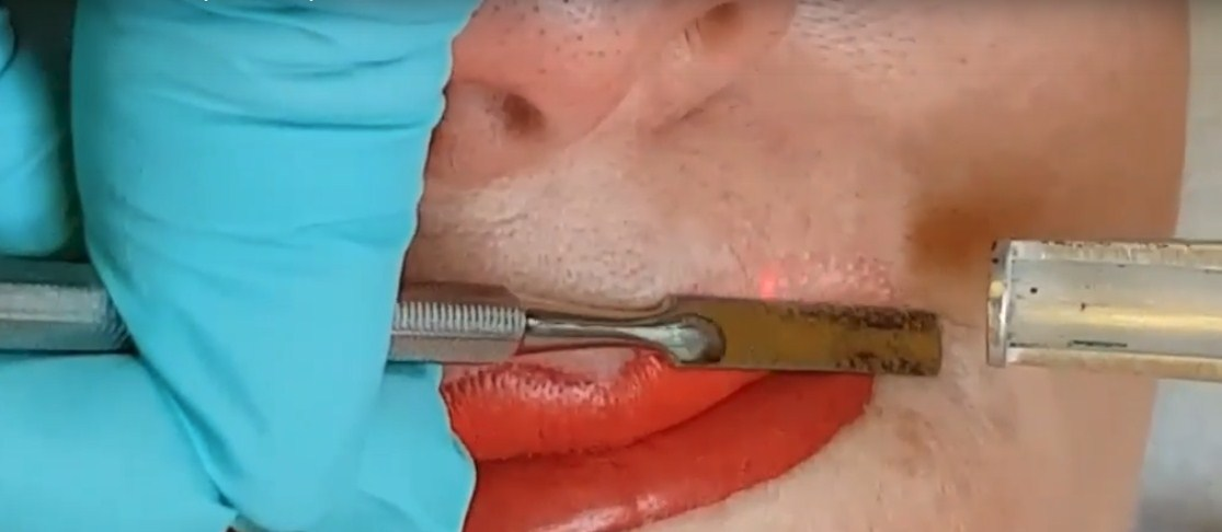 Удаление перманентного макияжа ремувером